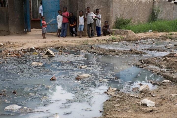 Cholera outbreak in Zimbabwe